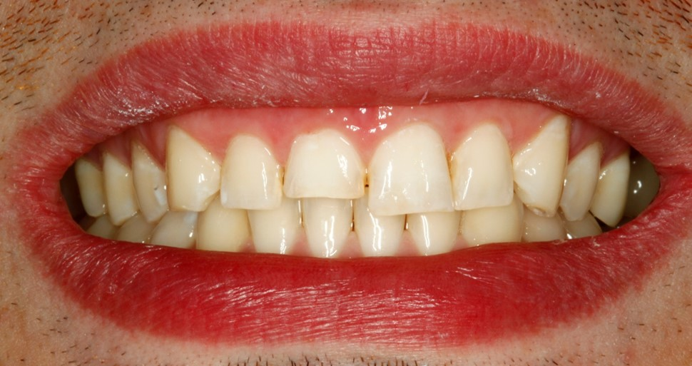 Before-and-after-front-tooth-chip-before.jpg