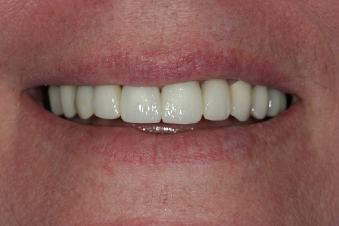 before-and-after-broken-and-mising-teeth-after-1.jpg