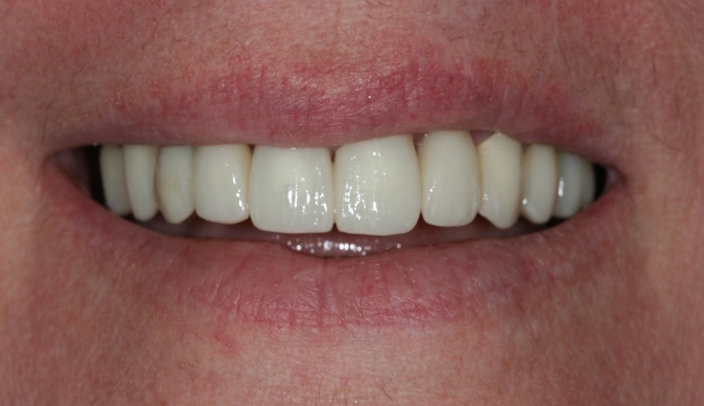 before-and-after-broken-and-mising-teeth-after-2.jpg
