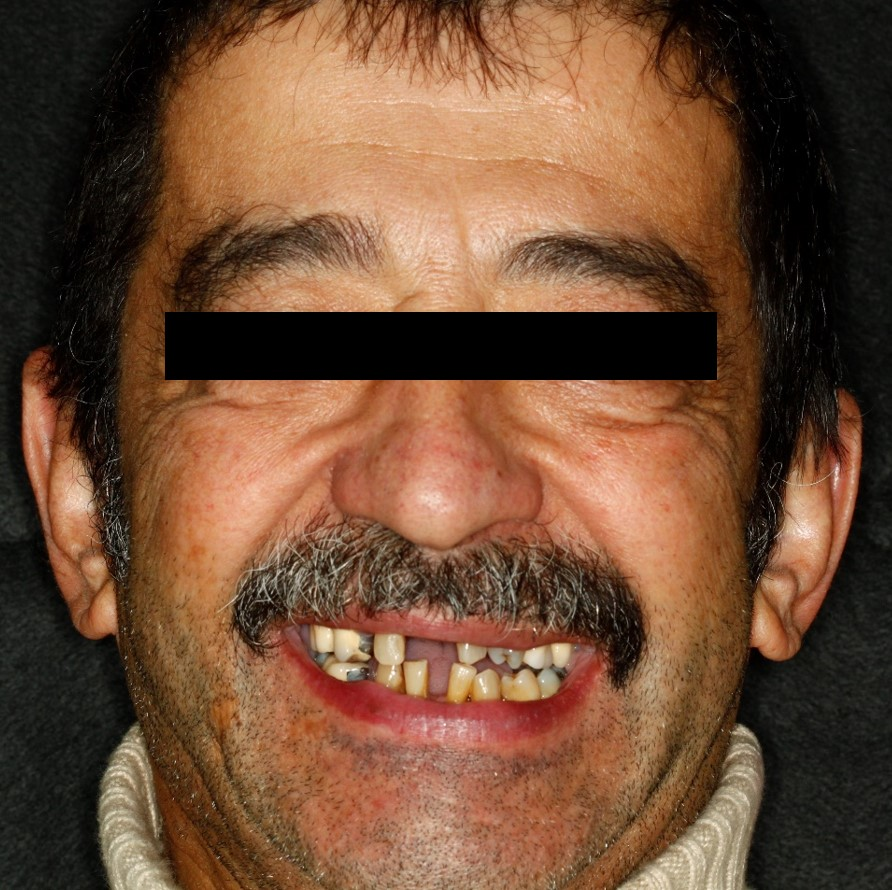 before-and-after-missing-and-malaligned-teeth-before.jpg