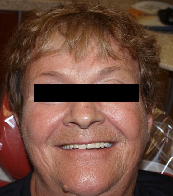 before-and-after-unesthetic-denture-after.jpg