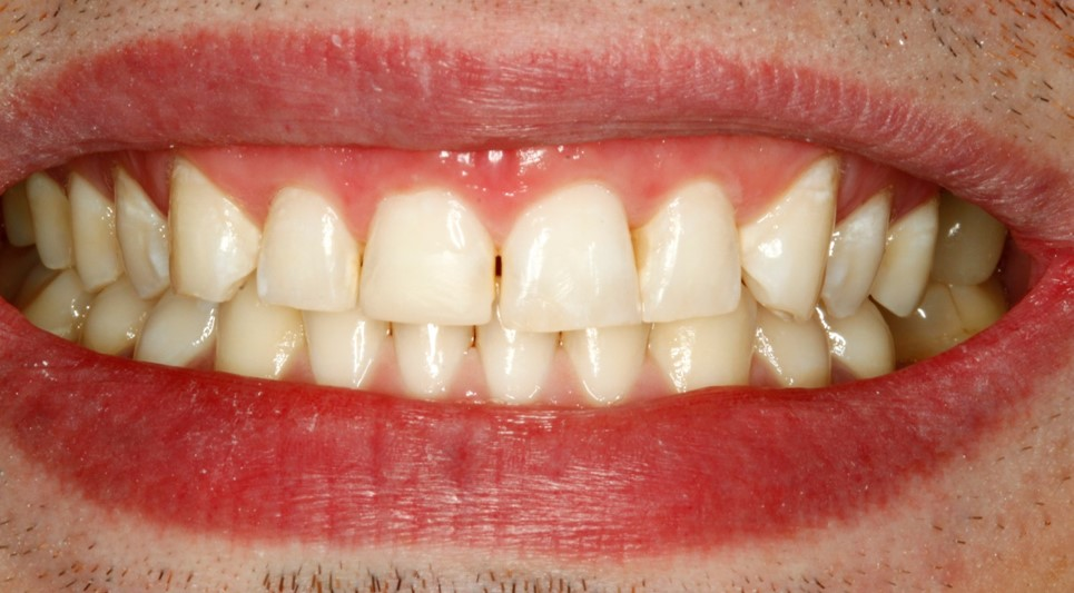 Before-and-after-front-tooth-chip-after.jpg
