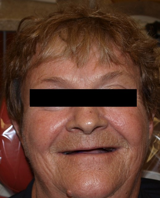 before-and-after-unesthetic-denture-before.jpg